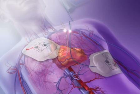 دانلود انیمیشن فیبریلاسیون بطنی