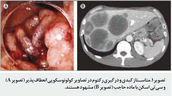 پزشکی بالینی- نشانگان نورولپتيک بدخيم